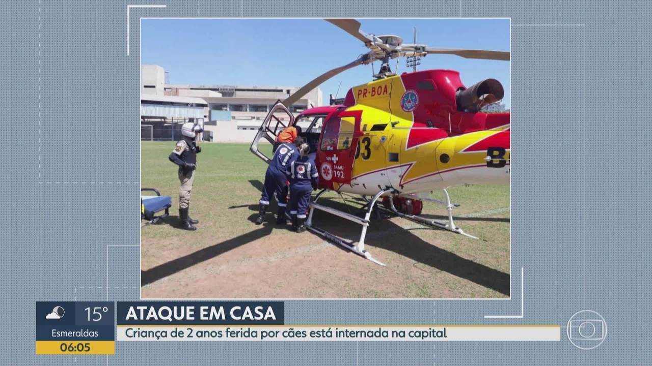 Menina de 2 anos atacada por cães dentro de casa continua internada em Belo Horizonte