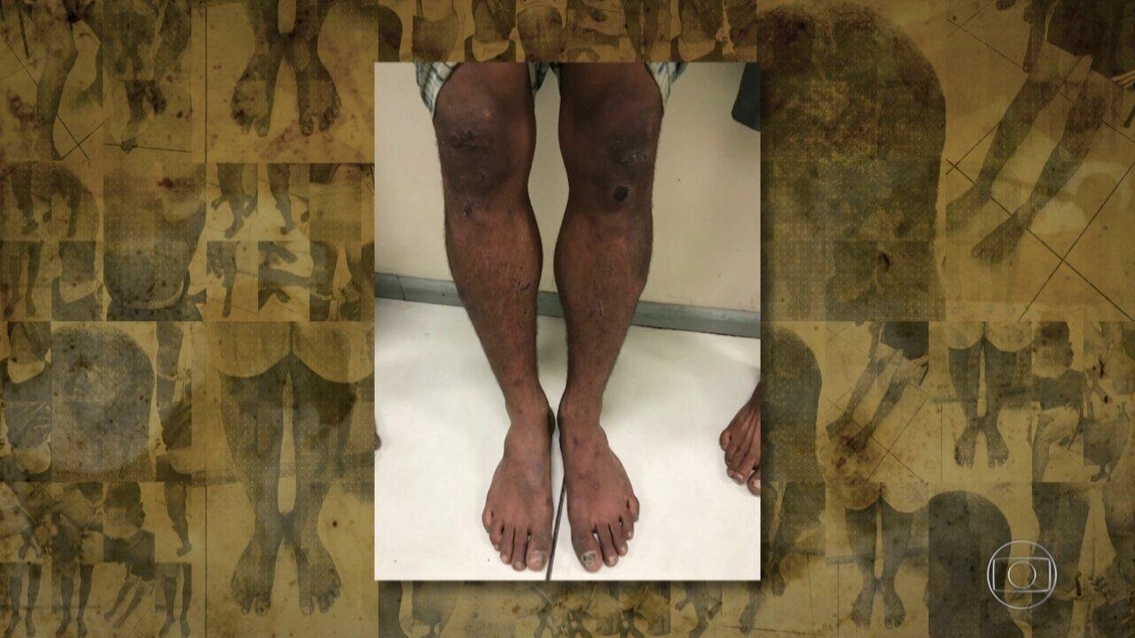 Exclusivo: novos laudos reforçam denúncia de tortura durante intervenção militar no Rio