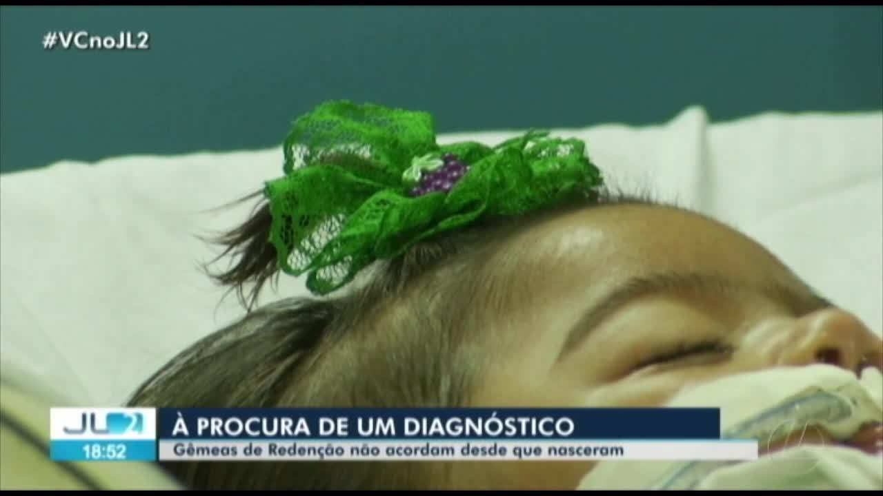 Resultado de imagem para Caso raro de gêmeas que dormem desde que nasceram há 6 meses intriga médicos em Redenção, no PA